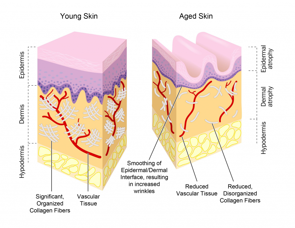 Aged Skin Cross Section